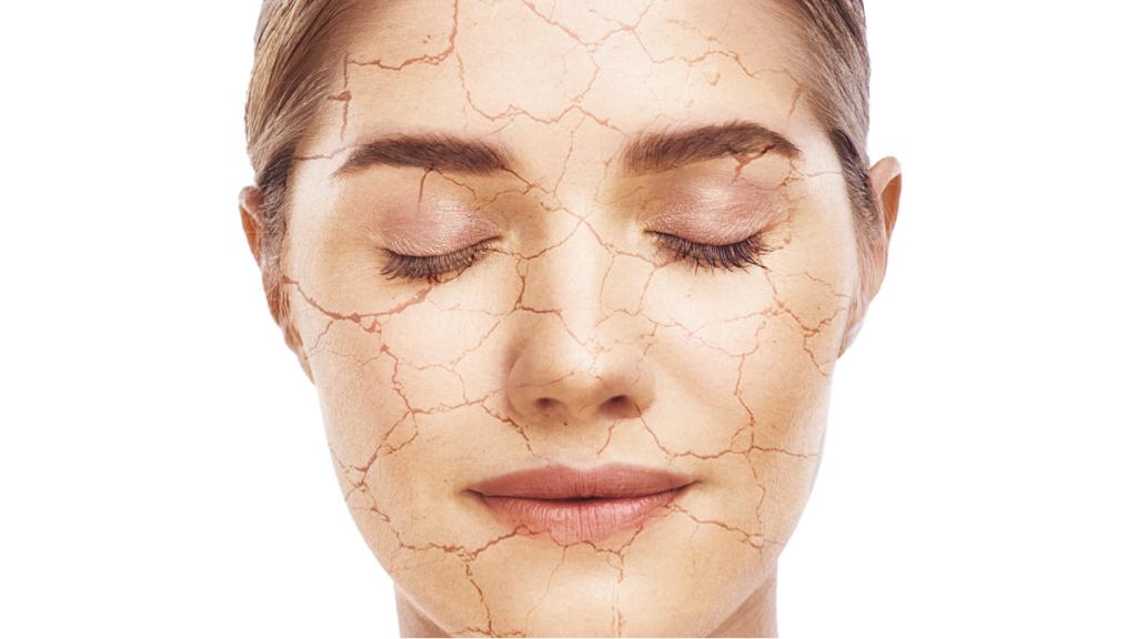 Soigner une peau très sèche