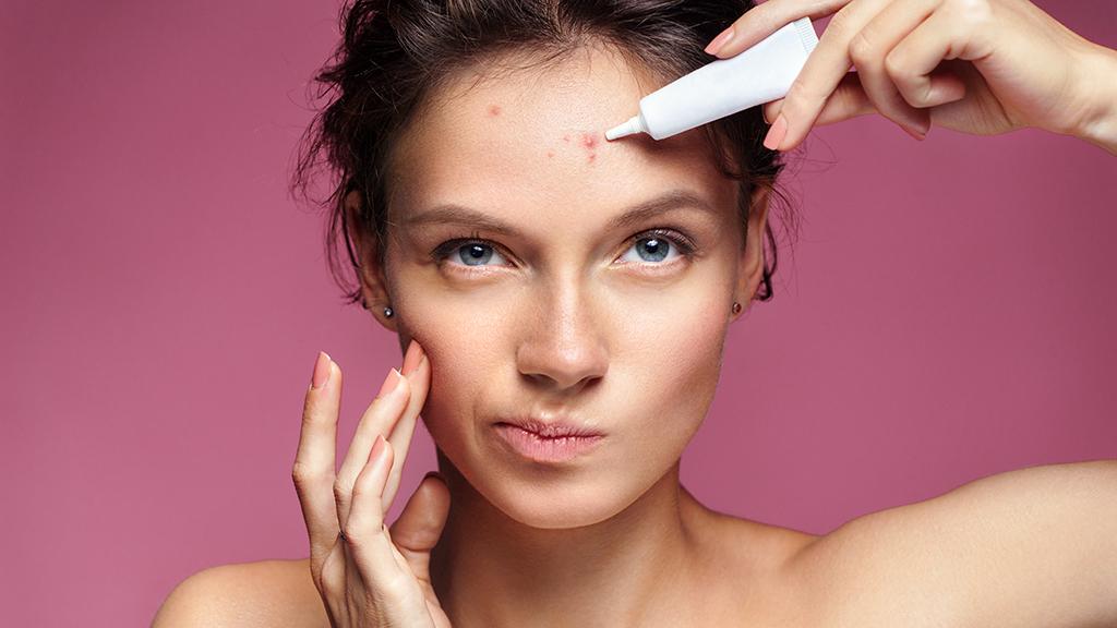 Comment traiter son acnée