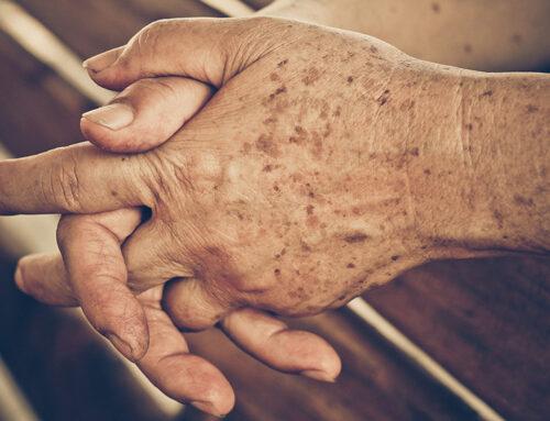 Les Taches de Vieillesse : Identification, Prévention, Solutions !