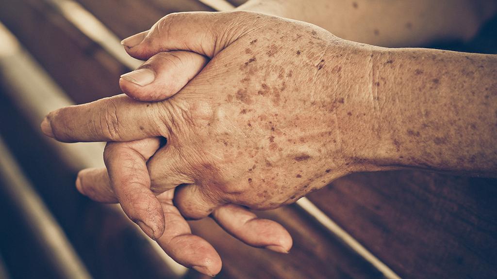 Tâches brunes sur les mains