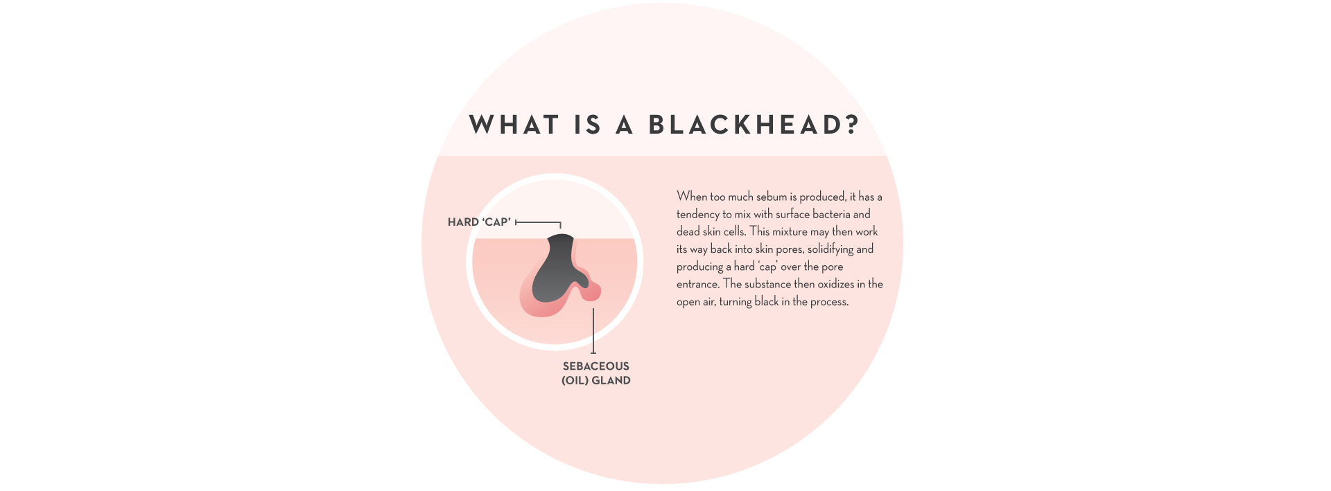 Process Flow Diagram Salicylic Acid The Definitive Guide To Eliminating Blackheads Mysa When Too Much Sebum Is Produced It Has A Tendency Mix With Surface Bacteria And Dead Skin Cells Then This Mixture May Work Its Way Back Into