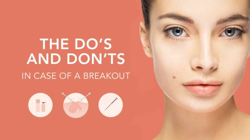 Popping Zits: A How to Guide of Do's and Don'ts When Popping