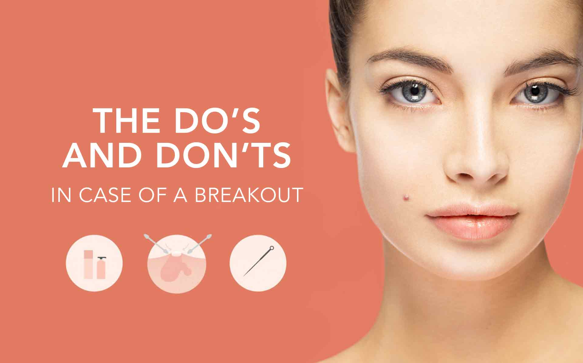 Popping Zits: A How to Guide of Do's and Don'ts When Popping a Pimple
