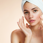 How the Right Masking Routine Helps Acne
