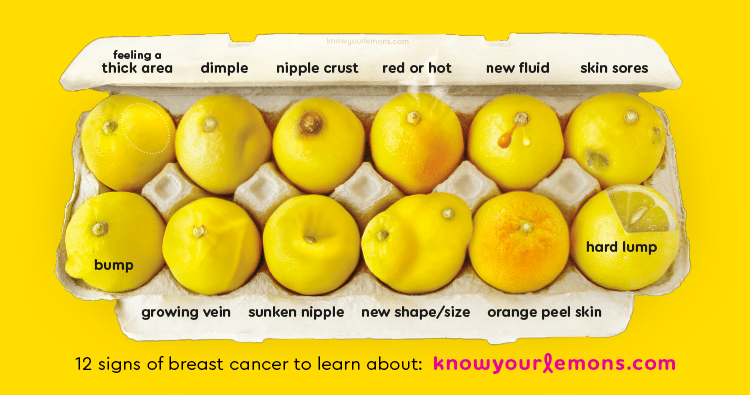 Lemons representative of breast abnormalities for breast cancer awareness campaign