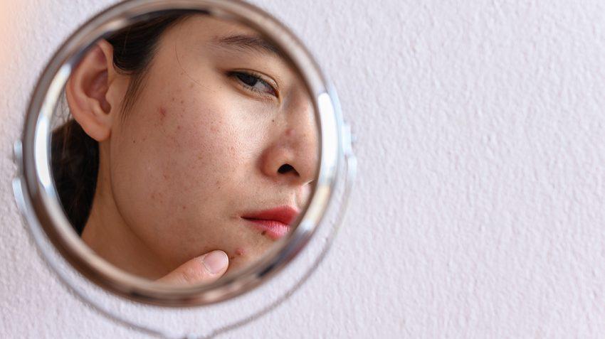 acne FOREO